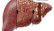 مراحل تليف الكبد