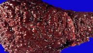 درجات تليف الكبد