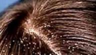 طريقة التخلص من قشرة الشعر