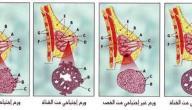 مراحل تطور سرطان الثدي