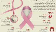 بحث عن سرطان الثدي