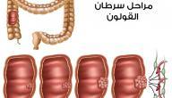 ما هي علامات سرطان القولون