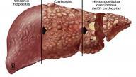 أعراض فيروس الكبد