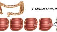 سرطان القولون هل هو مميت