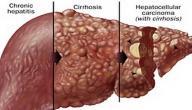 كيف ينتقل التهاب الكبد الوبائي