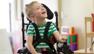 شلل الأطفال وعلاجه