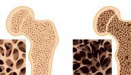 أعراض هشاشة العظام عند النساء
