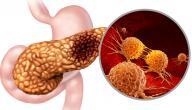 أعراض سرطان البنكرياس