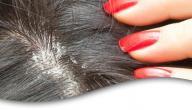إزالة القشرة من الشعر نهائياً