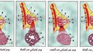 علاج سرطان الثدي الخبيث