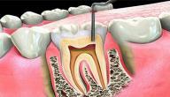 علاج التهاب عصب الأسنان