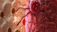 أنواع السرطانات التي تصيب الإنسان