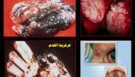 أضرار التدخين على الإنسان