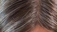 أسباب شيب الشعر