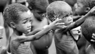 أمراض ناتجة عن سوء التغذية
