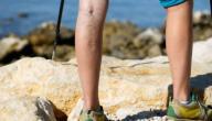 كيف أعالج دوالي الساقين