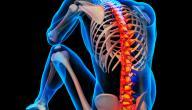 هشاشة العظام والعمود الفقري