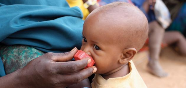سوء التغذية والأمراض الناتجة عنها