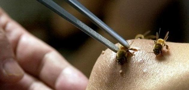 فوائد قرصة النحل