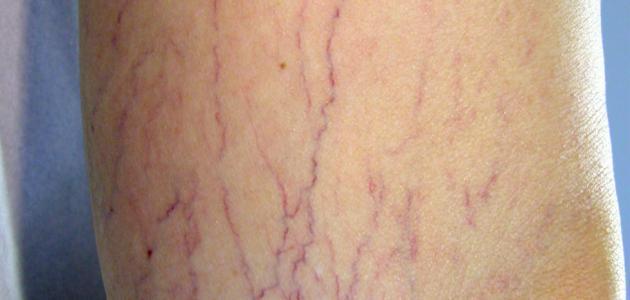 دوالي الساقين عند الحامل و علاجها