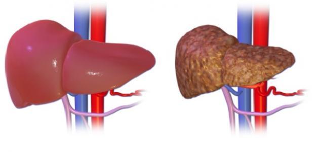 علاج تشمع الكبد