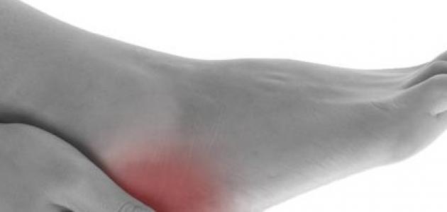 زيادة البروتين في الدم