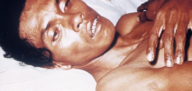 مسبب مرض الكوليرا