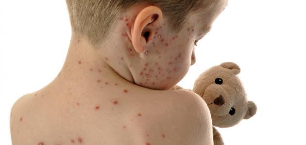 تشخيص مرض الحصبة