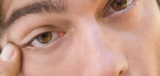 ما سبب رفرفة العين