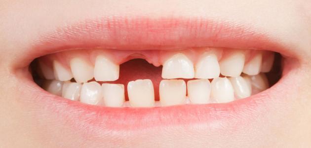 كم عدد الأسنان المؤقتة عند الطفل