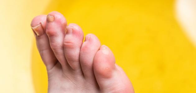 تنميل أصابع القدم موضوع