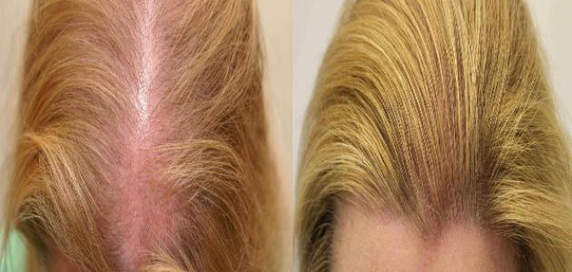 إنبات الشعر في مقدمة الرأس للنساء