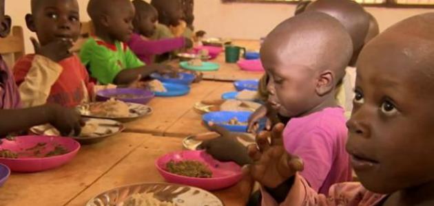 أسباب سوء التغذية