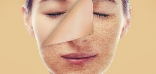 التخلص من البقع في الوجه