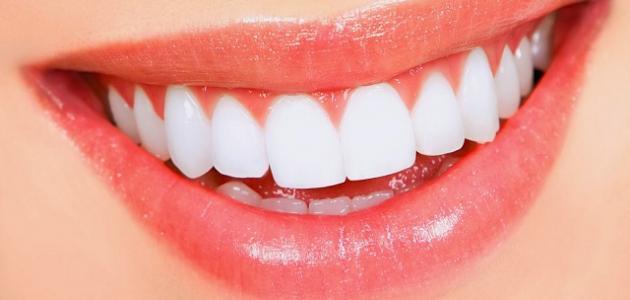 أضرار تلبيس الأسنان
