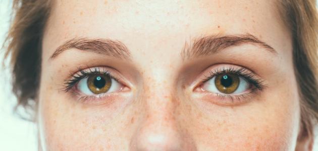 خلطة لإزالة النمش من الوجه