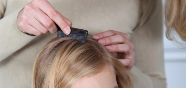 التخلص من حشرات الشعر