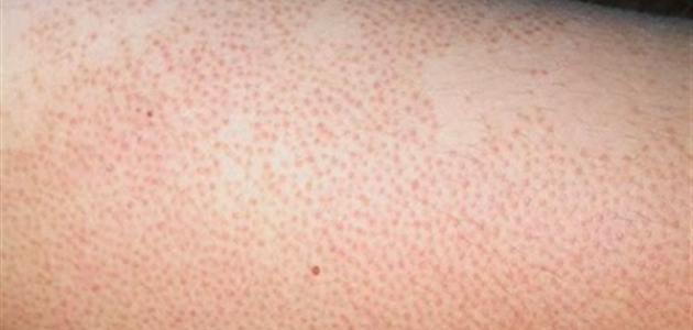 التخلص من جلد الوزة