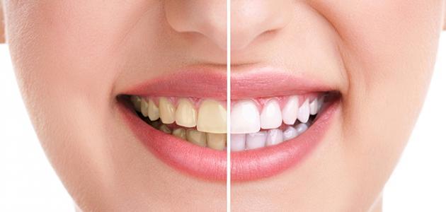 أفضل حل لتبييض الأسنان