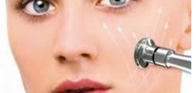 أضرار تقشير الوجه بالليزر