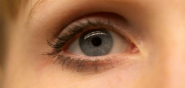 طريقة إزالة السواد من تحت العين