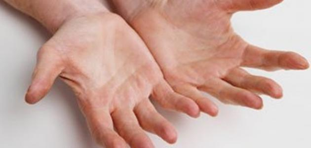 أسباب تشقق اليدين - موضوع