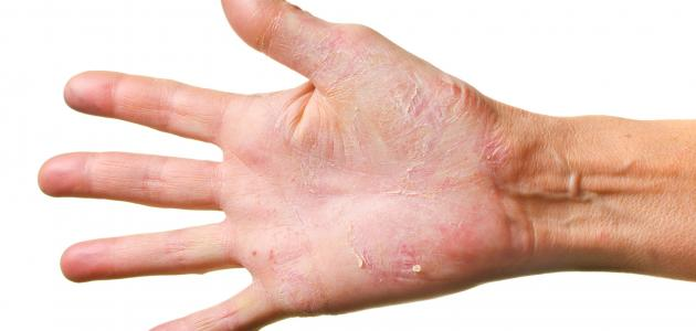 علاج مرض الصدفية