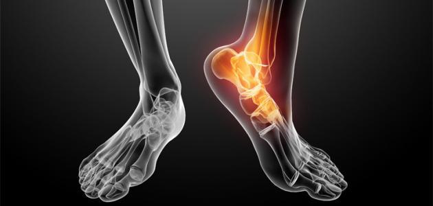 أسباب آلام المفاصل والعظام