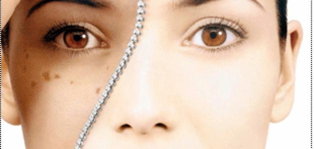 أسباب البقع البنية في الوجه