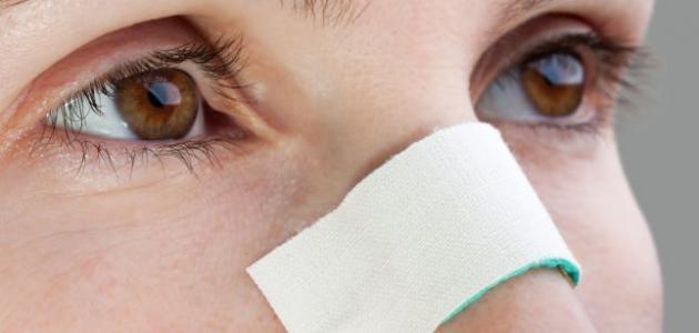 إزالة الزيوان من الوجه