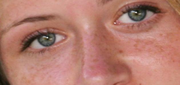 إزالة الكلف من الوجه طبيعياً