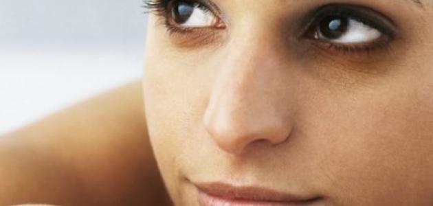 طريقة لإزالة الهالات السوداء تحت العين