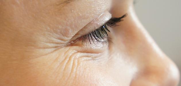 طرق لإزالة التجاعيد حول العين
