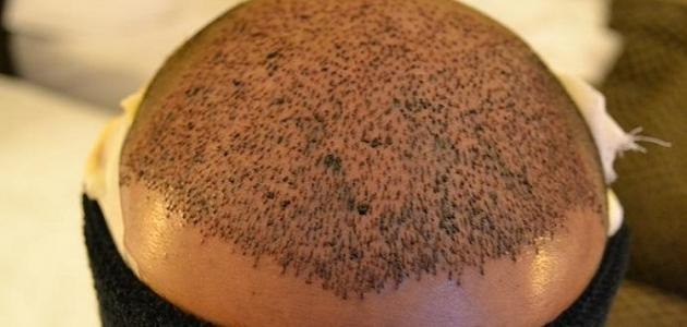 أحدث طرق زراعة الشعر